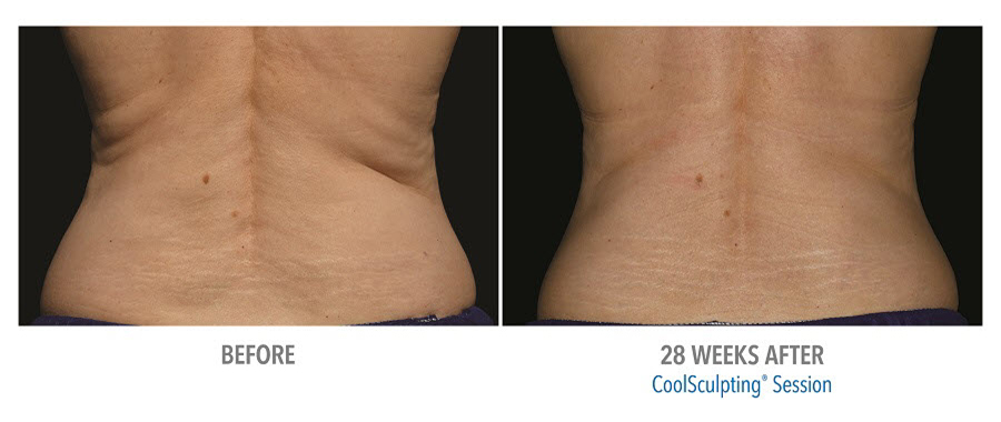 CoolSculpting to lower back. Before and after taken 28 weeks apart