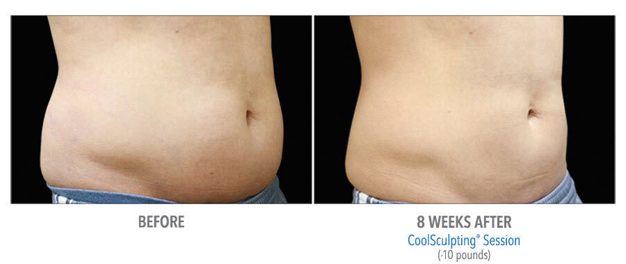 CoolSculpting to belly. Before and after taken 8 weeks apart. Patient lost 10 pounds