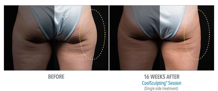 CoolSculpting to buttocks. Before and after taken 16 weeks apart. Single side treatment on the right