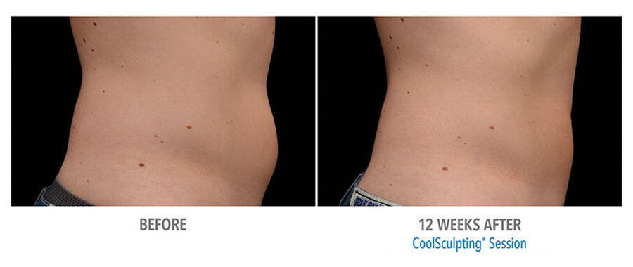 CoolSculpting to belly. Before and after taken 12 weeks apart